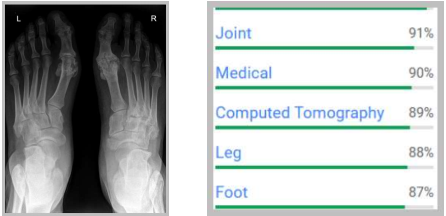 AI applicata alle radiografie